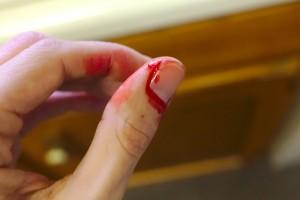 Dedo sangrando